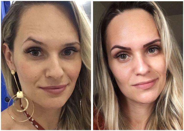antes e depois micro